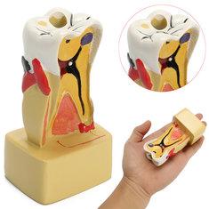 Teaching Dental Disease Teeth Implantation Model Study