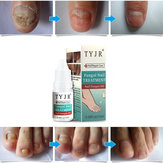 10ML Fungal Nail Treatment Nail Nutrient Solution