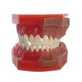 歯科模型乳歯交換モデルの歯科用ツール医療モデル