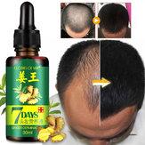Siero di ricrescita naturale del ginseng dello zenzero naturale di perdita Olio di crescita dei capelli US
