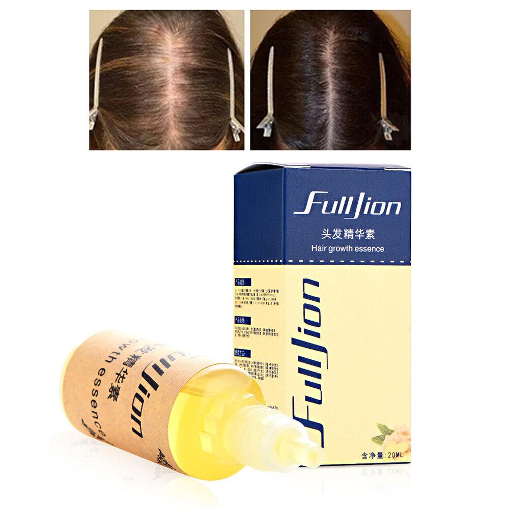 20ml Hair Growth Essence Hair Repair Regrowth Nourishing Essential Oil Anti Hair Loss