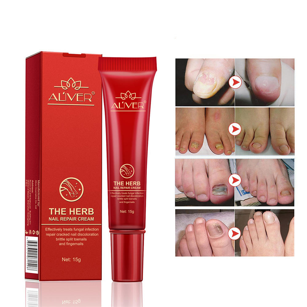 15g Nail Repair Cream Toenail Fungus Treatment Exfoliating Dead Skin Sterilization Nail Cream