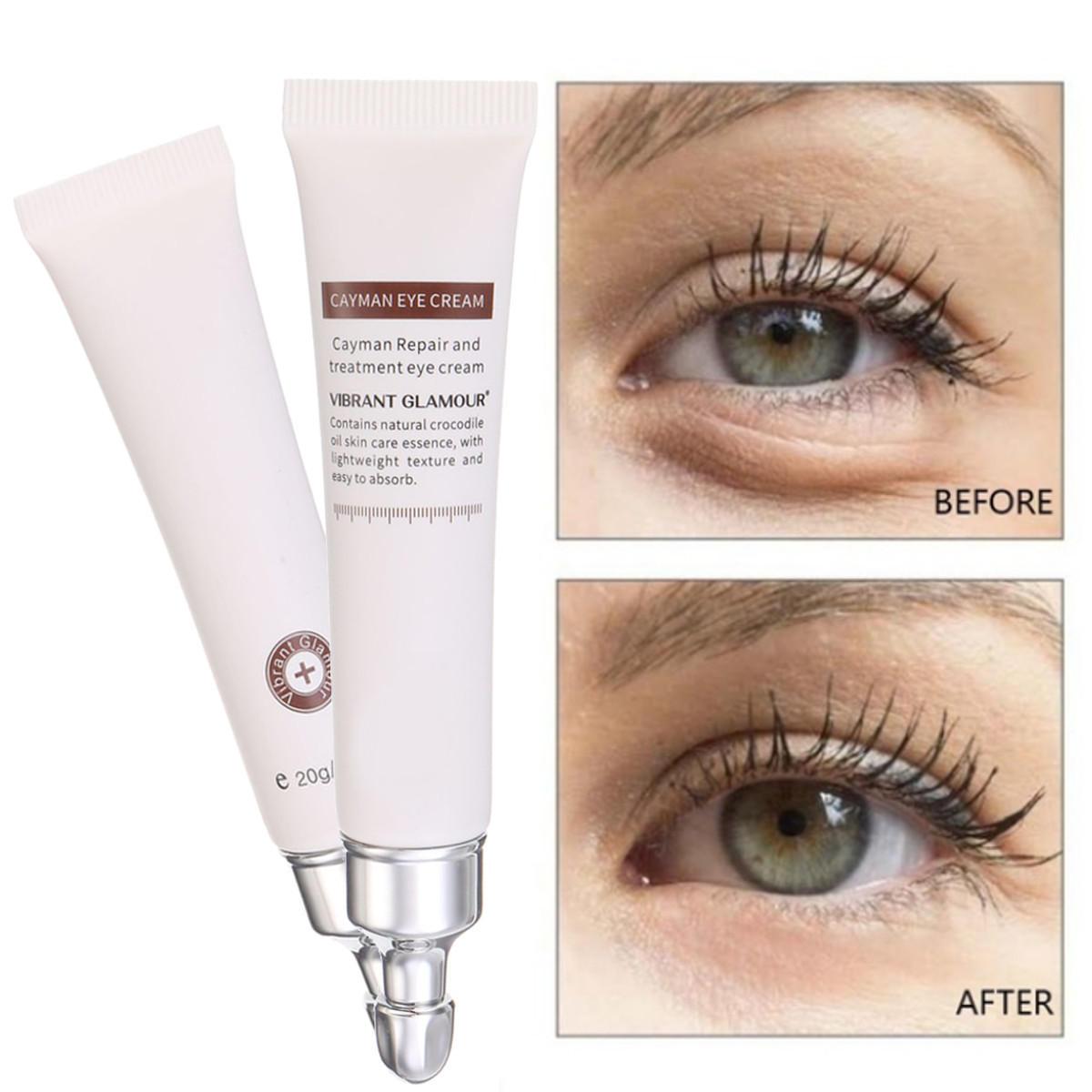 best under eye treatment