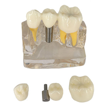 4X Denture Disease Teeth Model Toy Caries Decay Tooth For Dental Medical Demo Communication Teaching